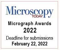 Awards & Scholarships - Micrograph Awards Competition | Microscopy